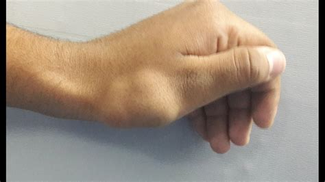 Vascular malformation of hand - YouTube